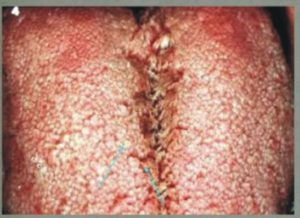 Patients-with-fissured-tongue-dorsum-may-have-enlongated-filiform-papillae-along-the-dorsum-walls